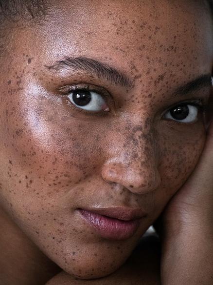 Unique Mixed freckles